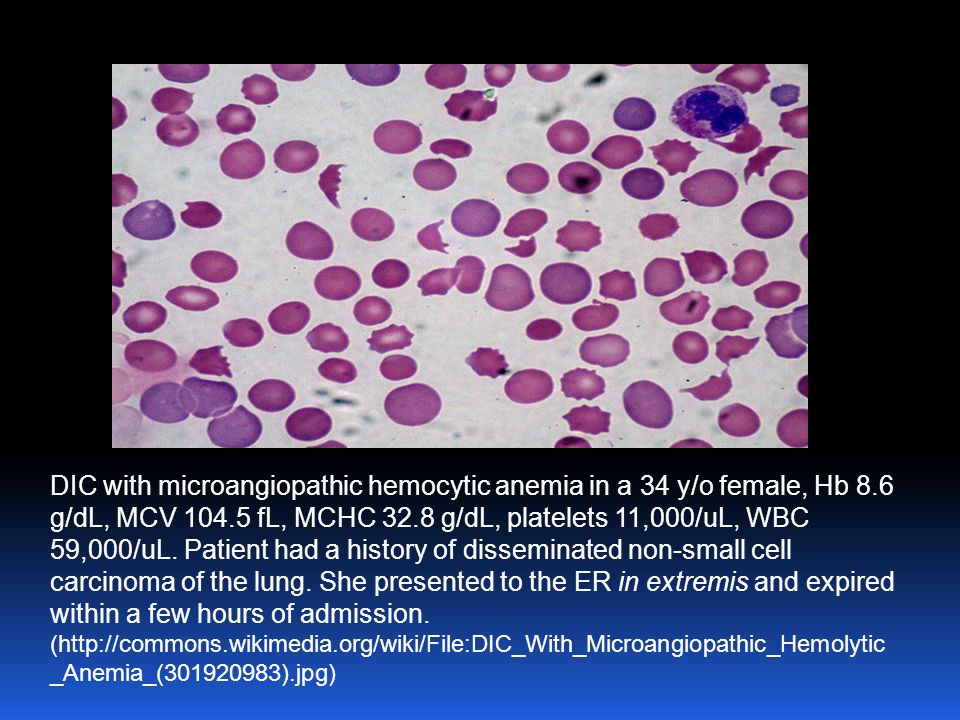 Malignancies -3 rd most frequent cause of DIC -accounts for 7 % of clinically evident cases -can cause acute DIC in Acute Promyelocytic Leukemia -pulm