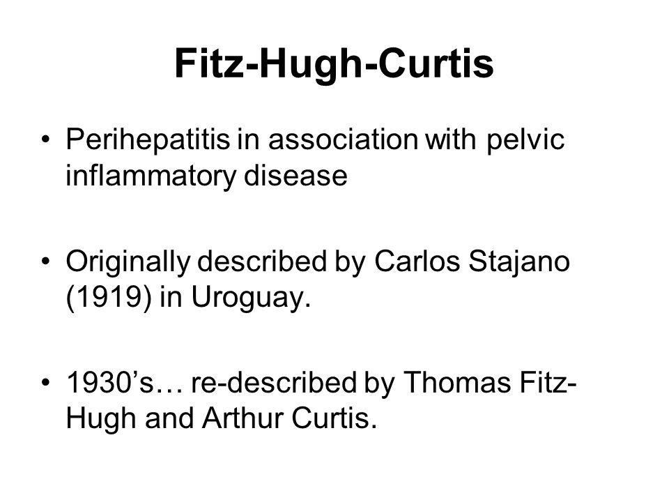 Fitz-Hugh-Curtis Perihepatitis in association with pelvic inflammatory disease Originally described by Carlos Stajano (1919) in Uroguay. 1930s… re-des