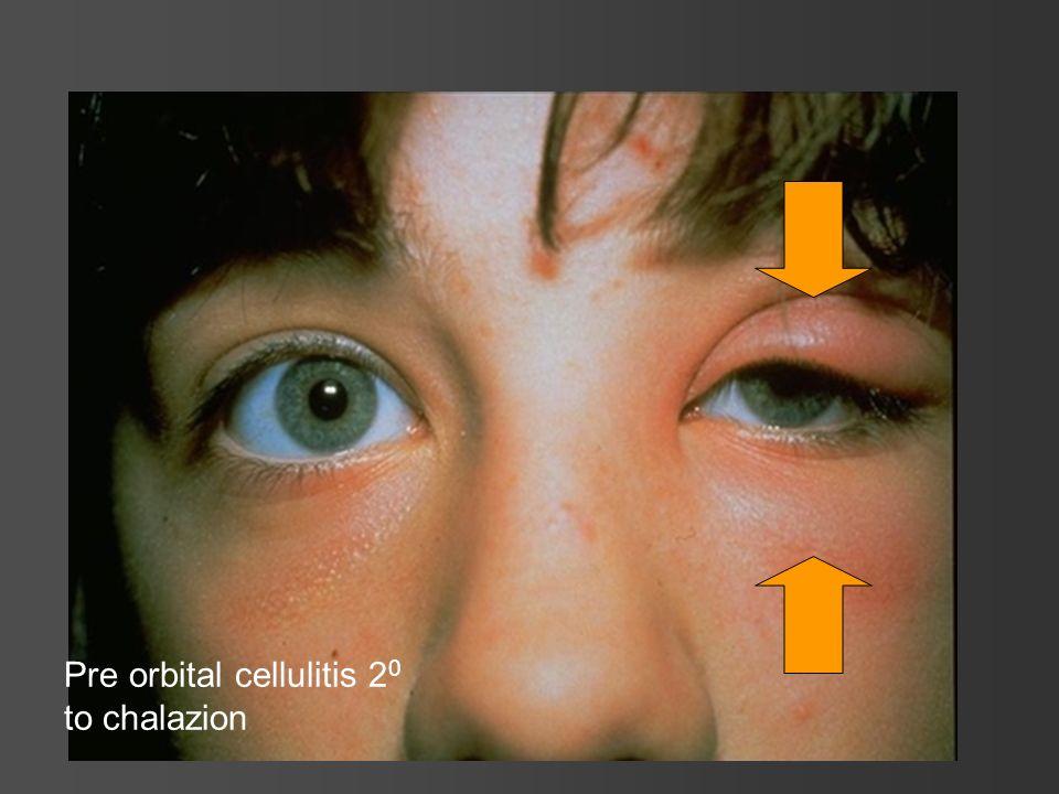 Pre orbital cellulitis 2 0 to chalazion