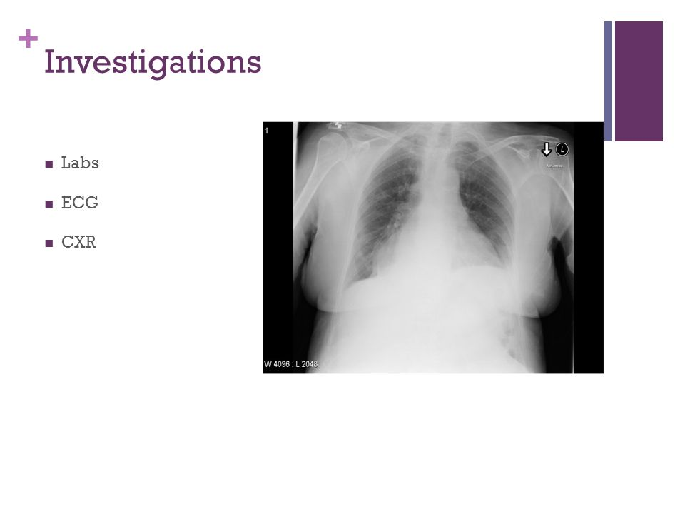 + Investigations Labs ECG CXR