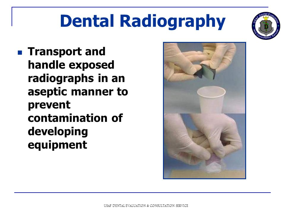 USAF DENTAL EVALUATION & CONSULTATION SERVICE Dental Radiography Transport and handle exposed radiographs in an aseptic manner to prevent contamination of developing equipment