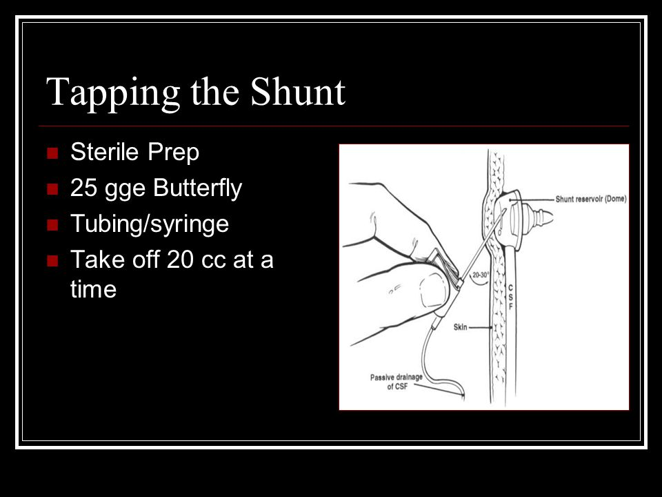 Tapping the Shunt Sterile Prep 25 gge Butterfly Tubing/syringe Take off 20 cc at a time