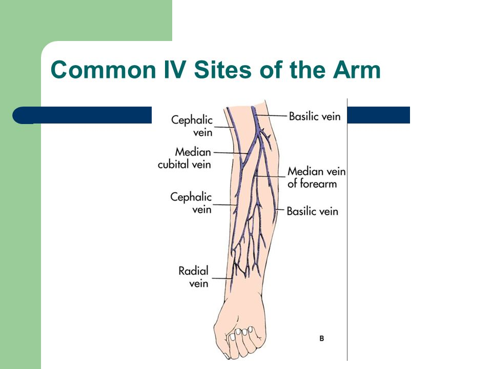 Common IV Sites of the Hand