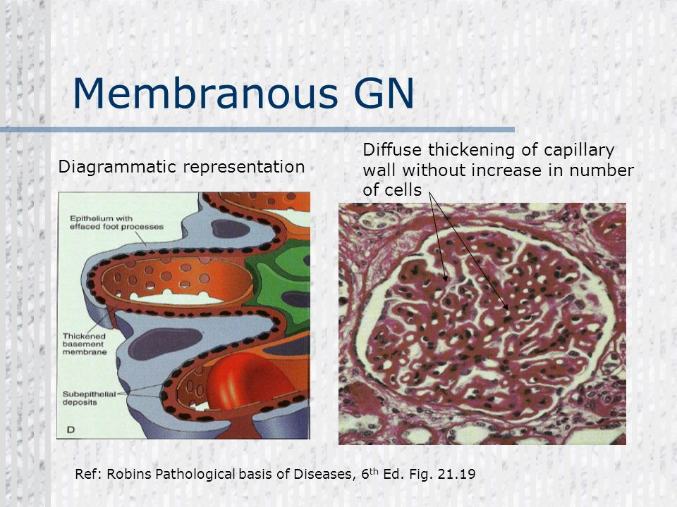 Membranous GN Diffuse thickening of capillary wall without increase in number of cells Ref: Robins Pathological basis of Diseases, 6 th Ed. Fig. 21.19