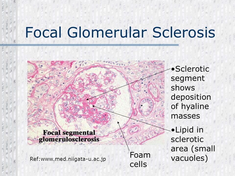 Focal Glomerular Sclerosis Sclerotic segment shows deposition of hyaline masses Lipid in sclerotic area (small vacuoles) Ref:www.med.niigata-u.ac.jp F