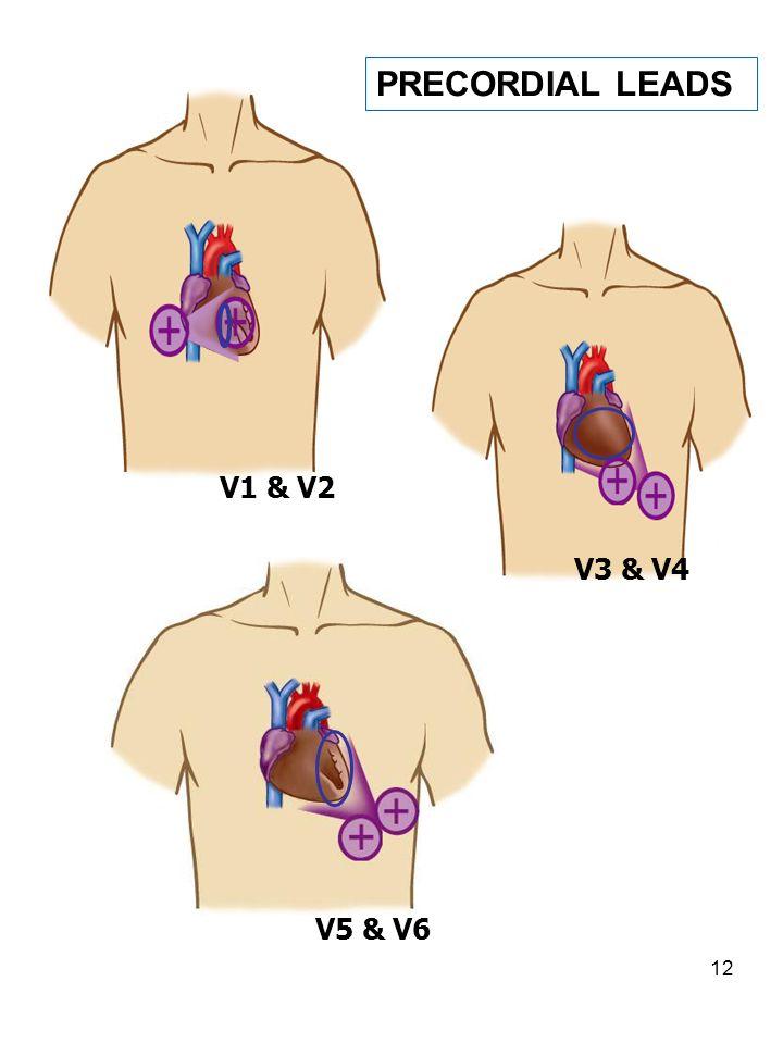 12 V3 & V4 V1 & V2 V5 & V6 PRECORDIAL LEADS