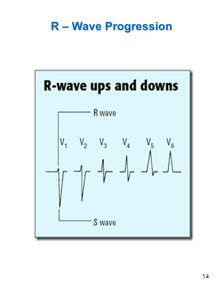 14 R – Wave Progression