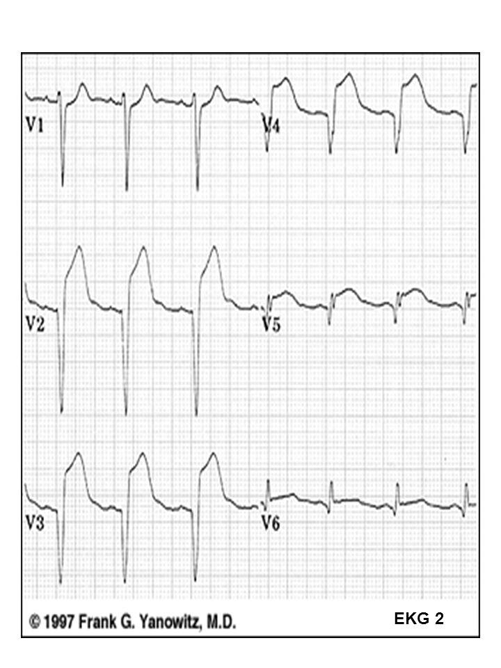 23 EKG 2