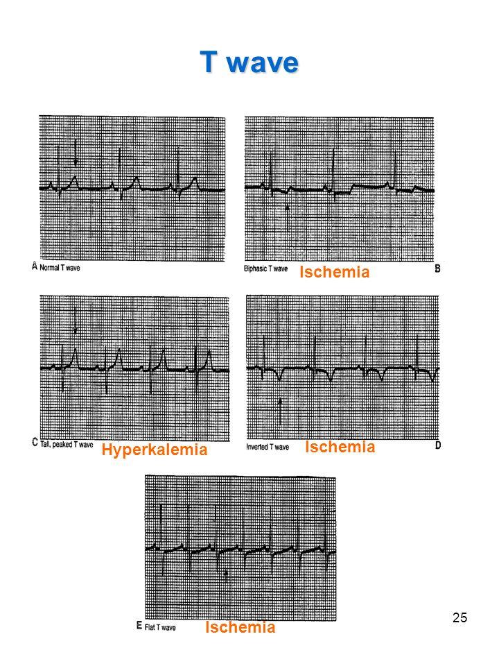 25 T wave Hyperkalemia Ischemia