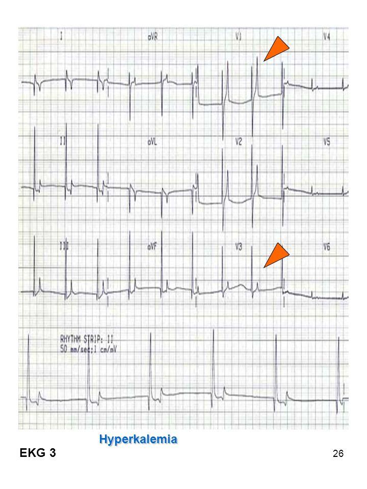 26 Hyperkalemia EKG 3