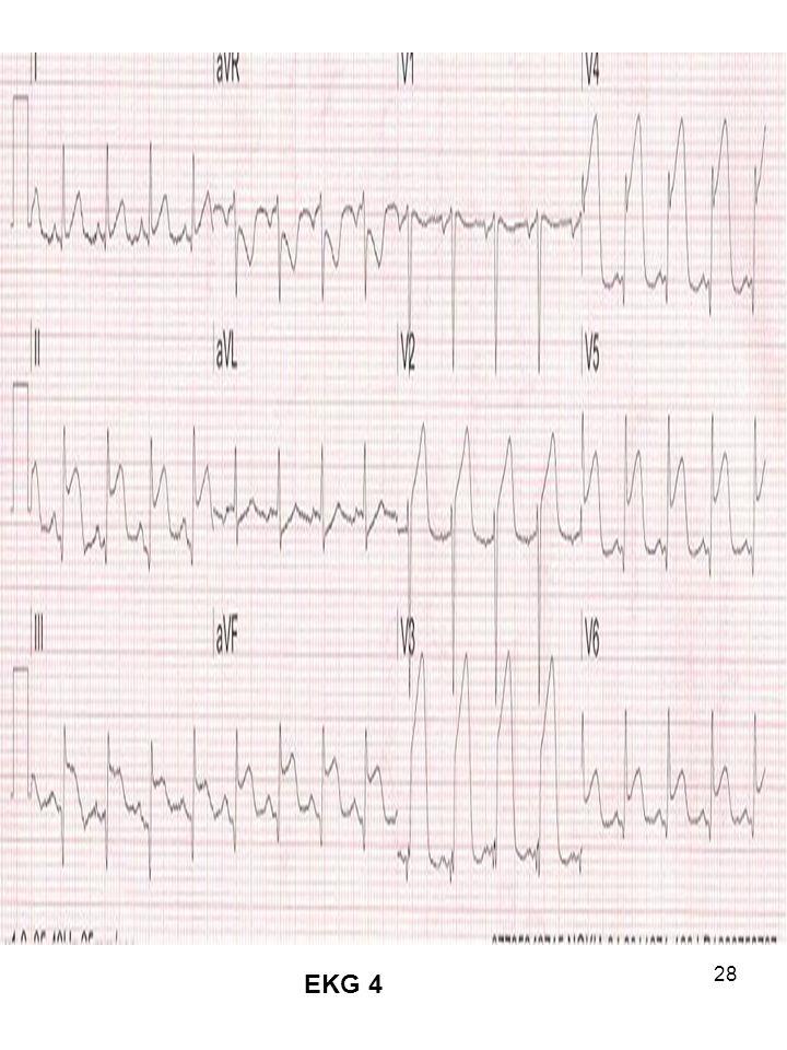 28 EKG 4