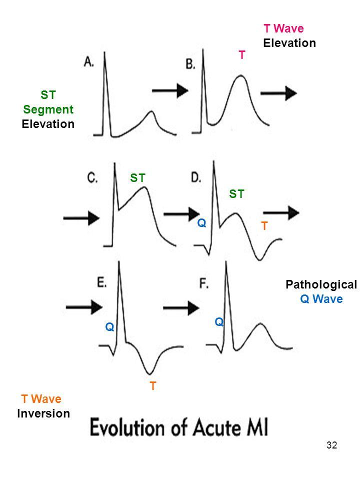 32 Pathological Q Wave ST Segment Elevation Q Q Q ST T T T Wave Elevation T Wave Inversion T