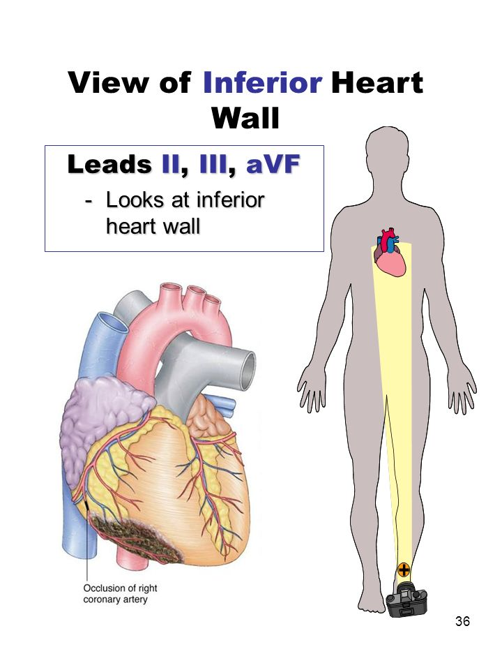 36 Leads II, III, aVF -Looks at inferior heart wall View of Inferior Heart Wall