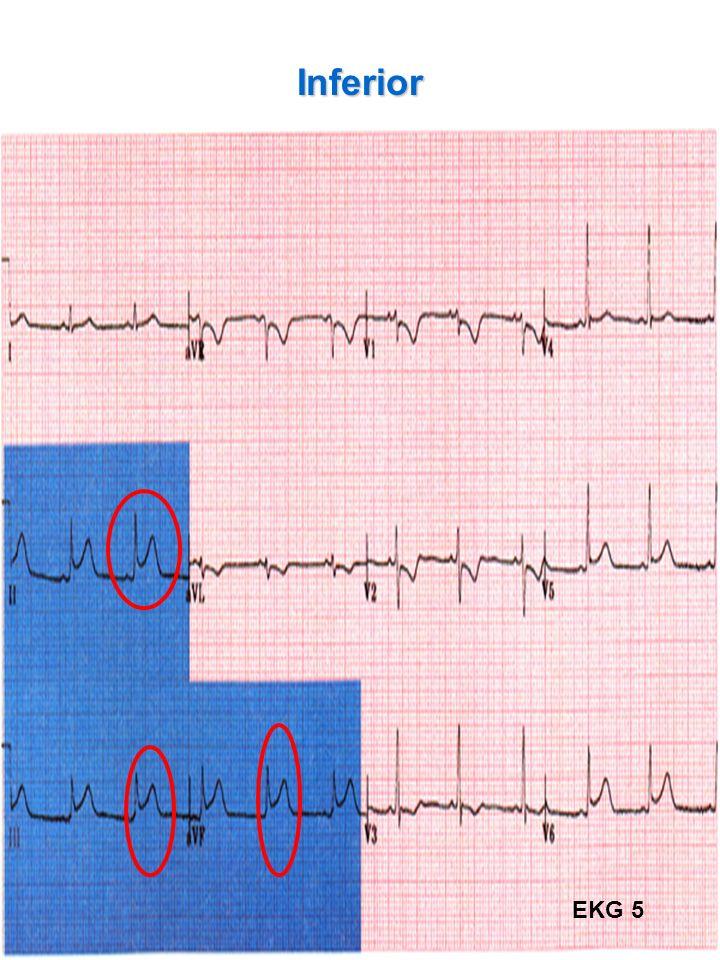 37 Inferior EKG 5