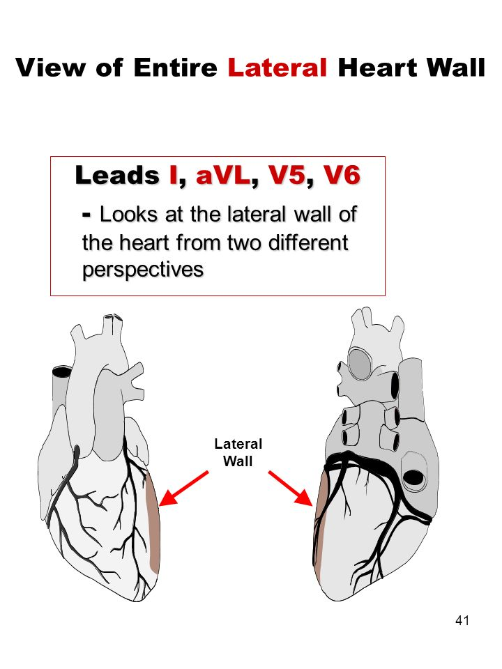 41 Leads I, aVL, V5, V6 - Looks at the lateral wall of the heart from two different perspectives View of Entire Lateral Heart Wall Lateral Wall