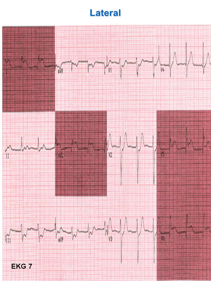 42 Lateral EKG 7