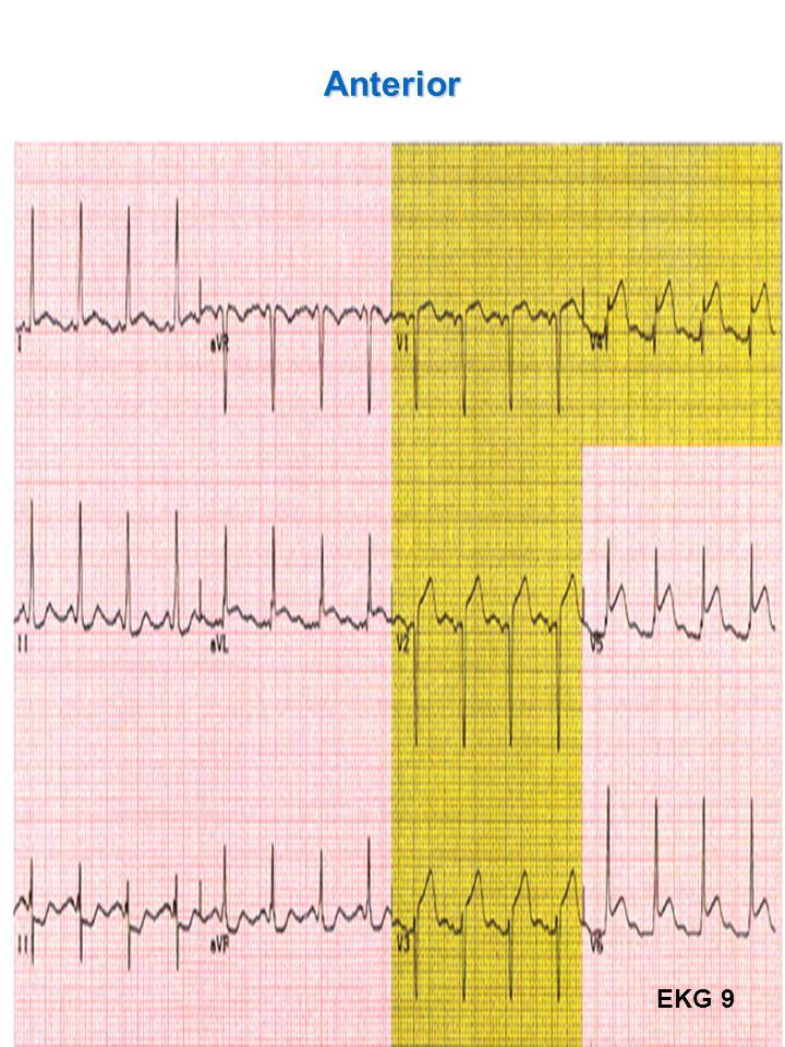 45 Anterior EKG 9