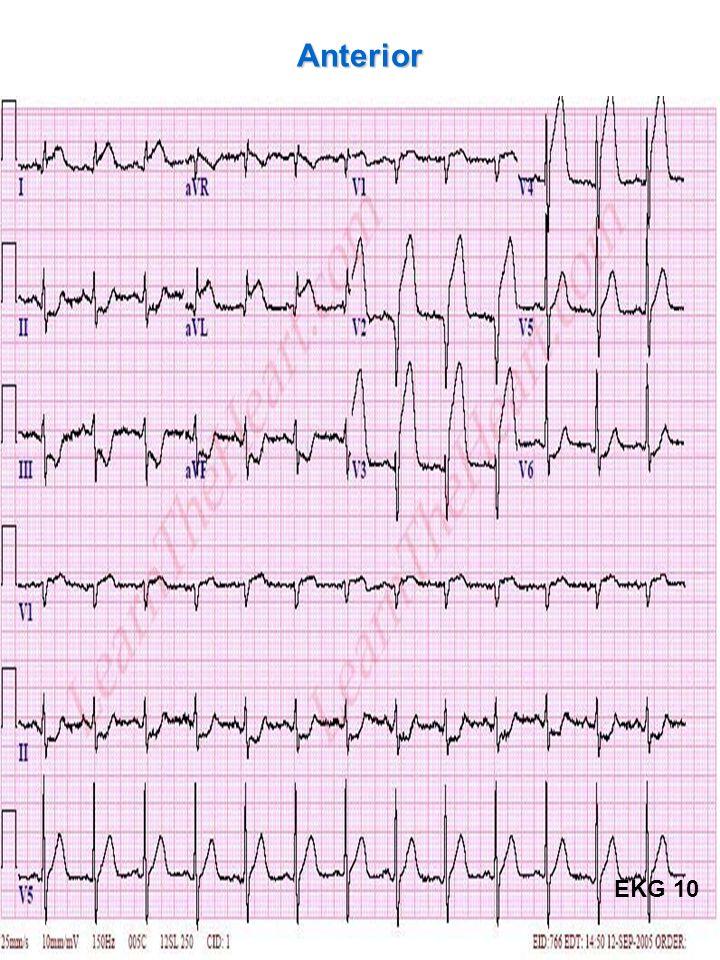 46 Anterior EKG 10