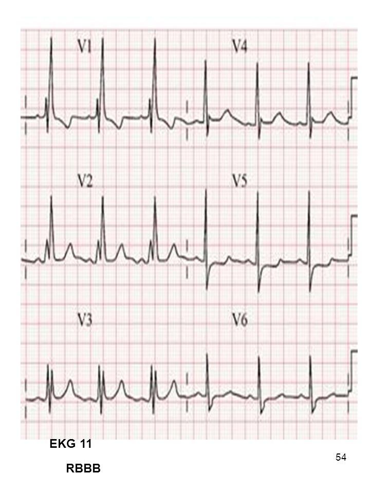 54 EKG 11 RBBB