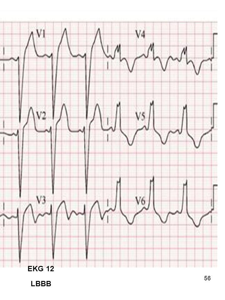 56 EKG 12 LBBB