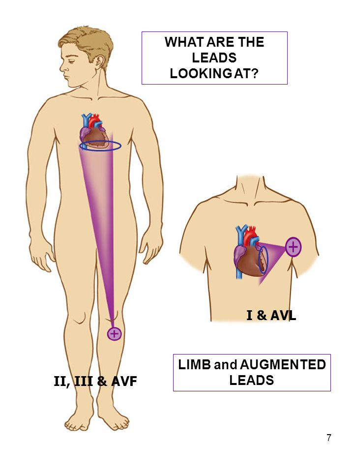 7 I & AVL II, III & AVF WHAT ARE THE LEADS LOOKING AT? LIMB and AUGMENTED LEADS