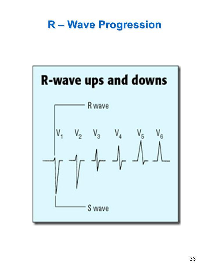 33 R – Wave Progression