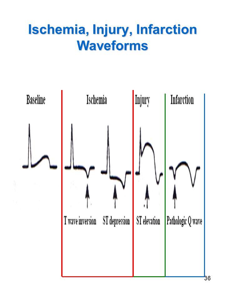 36 Ischemia, Injury, Infarction Waveforms