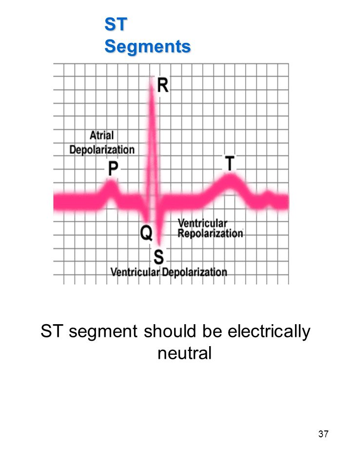 37 ST segment should be electrically neutral ST Segments