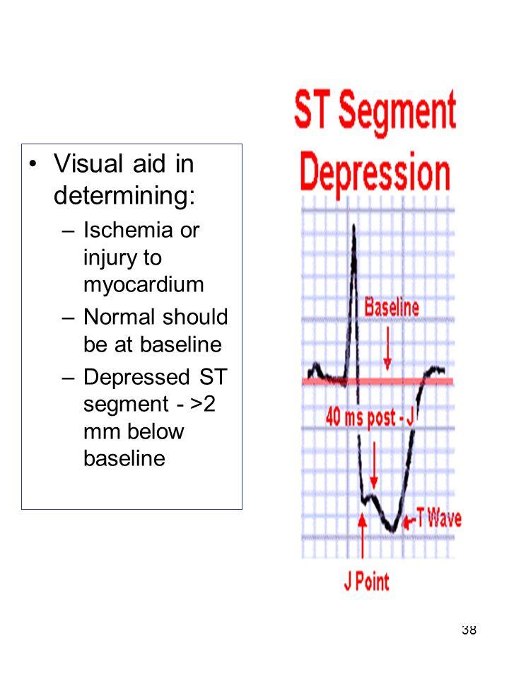 38 Visual aid in determining: –Ischemia or injury to myocardium –Normal should be at baseline –Depressed ST segment - >2 mm below baseline