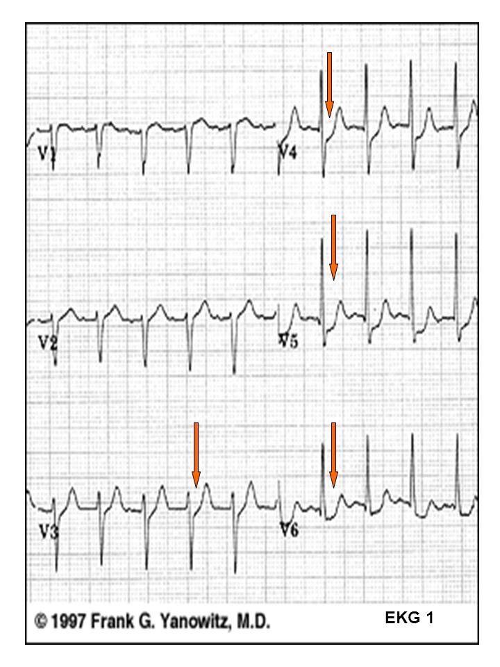 40 EKG 1