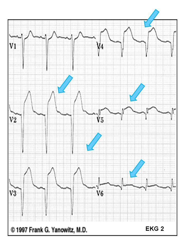 42 EKG 2