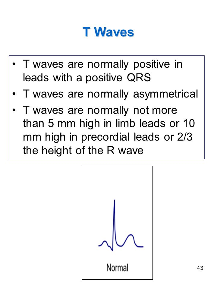 43 T Waves T waves are normally positive in leads with a positive QRS T waves are normally asymmetrical T waves are normally not more than 5 mm high i