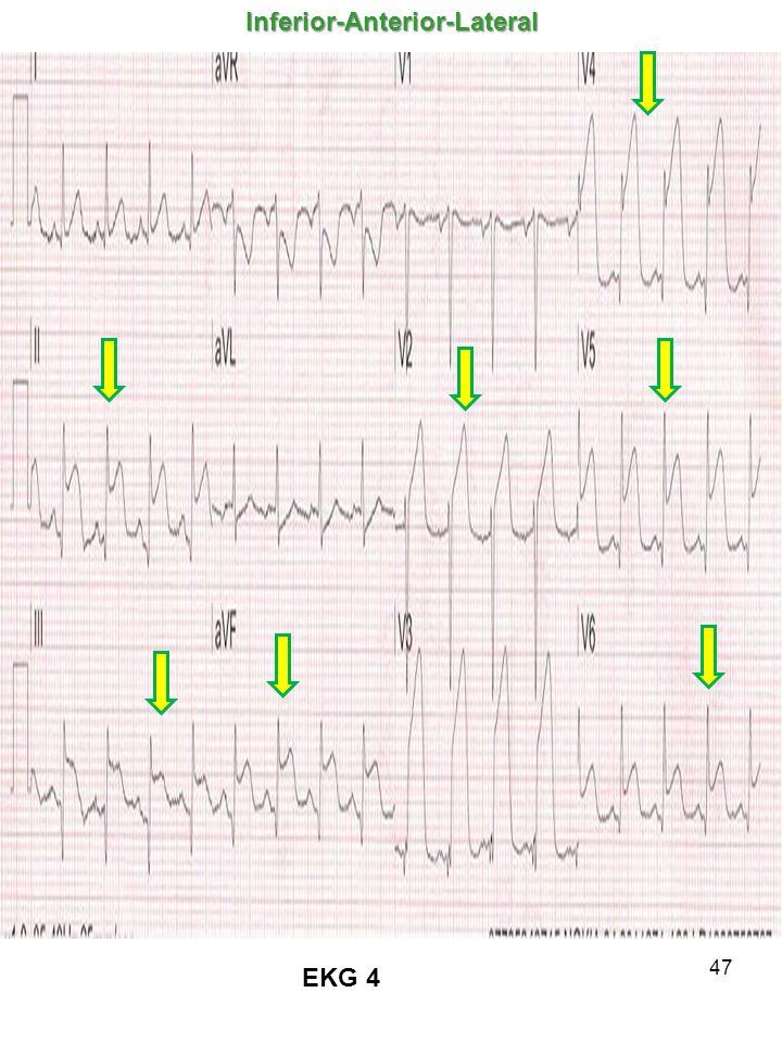 47 EKG 4Inferior-Anterior-Lateral