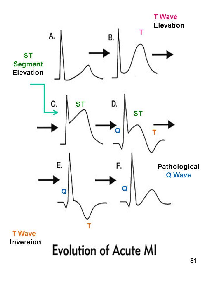 51 Pathological Q Wave ST Segment Elevation Q Q Q ST T T T Wave Elevation T Wave Inversion T