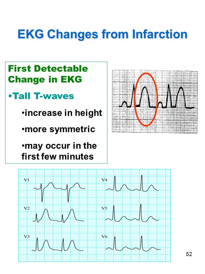 52 EKG Changes from Infarction First Detectable Change in EKG Tall T-waves increase in height more symmetric may occur in the first few minutes Hyper-