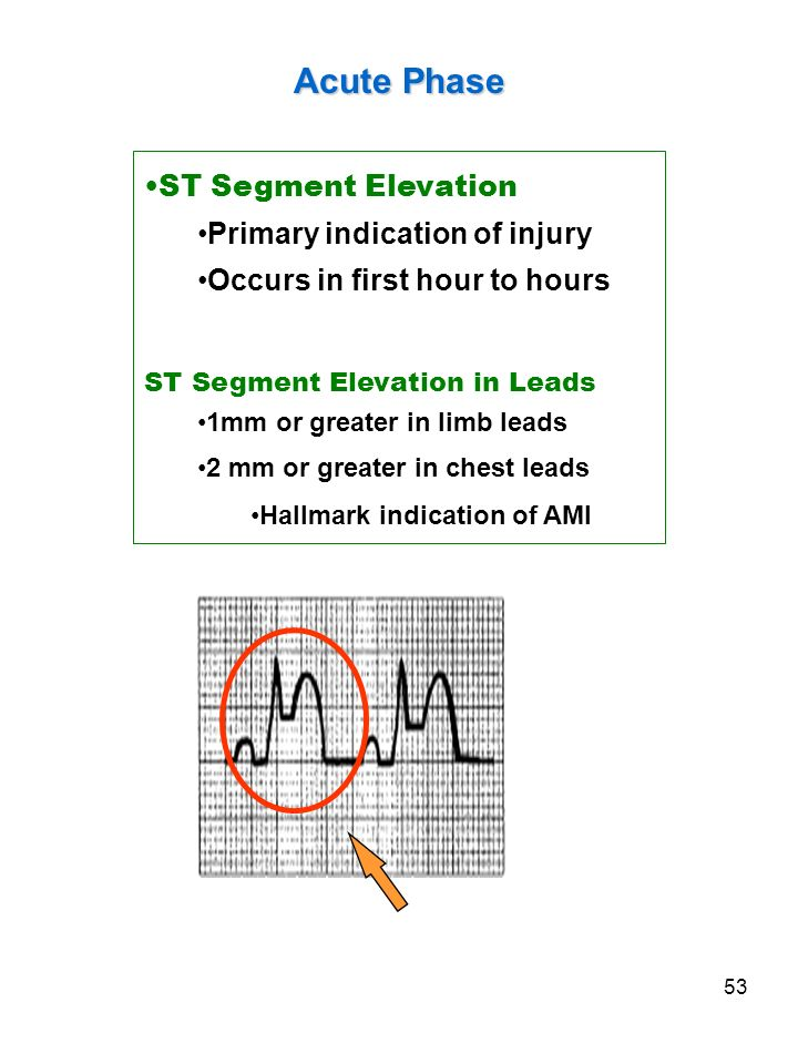 53 Acute Phase ST Segment Elevation Primary indication of injury Occurs in first hour to hours ST Segment Elevation in Leads 1mm or greater in limb le