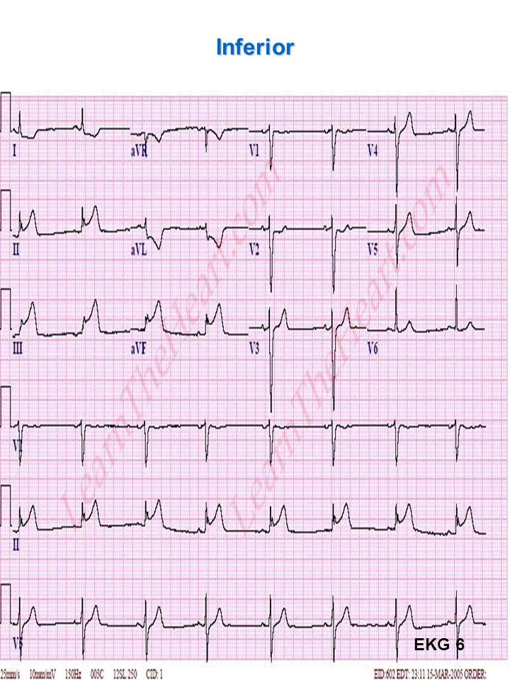 67 Inferior EKG 6