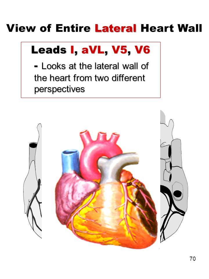 70 Leads I, aVL, V5, V6 - Looks at the lateral wall of the heart from two different perspectives Lateral View of Entire Lateral Heart Wall Lateral Wal