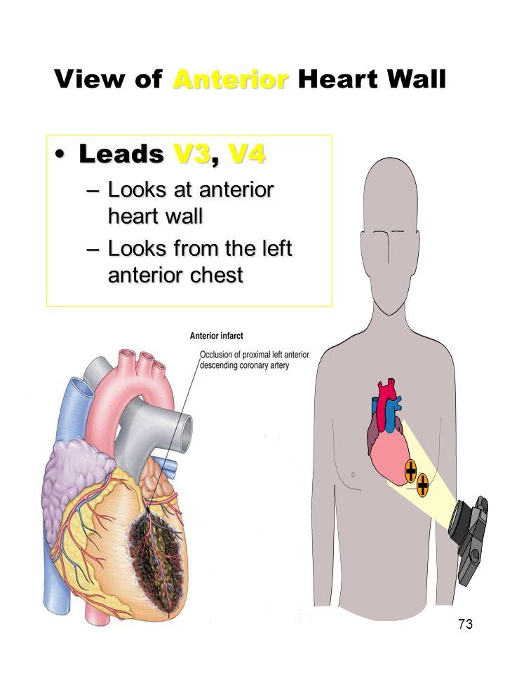 73 Leads V3, V4Leads V3, V4 –Looks at anterior heart wall –Looks from the left anterior chest Anterior View of Anterior Heart Wall