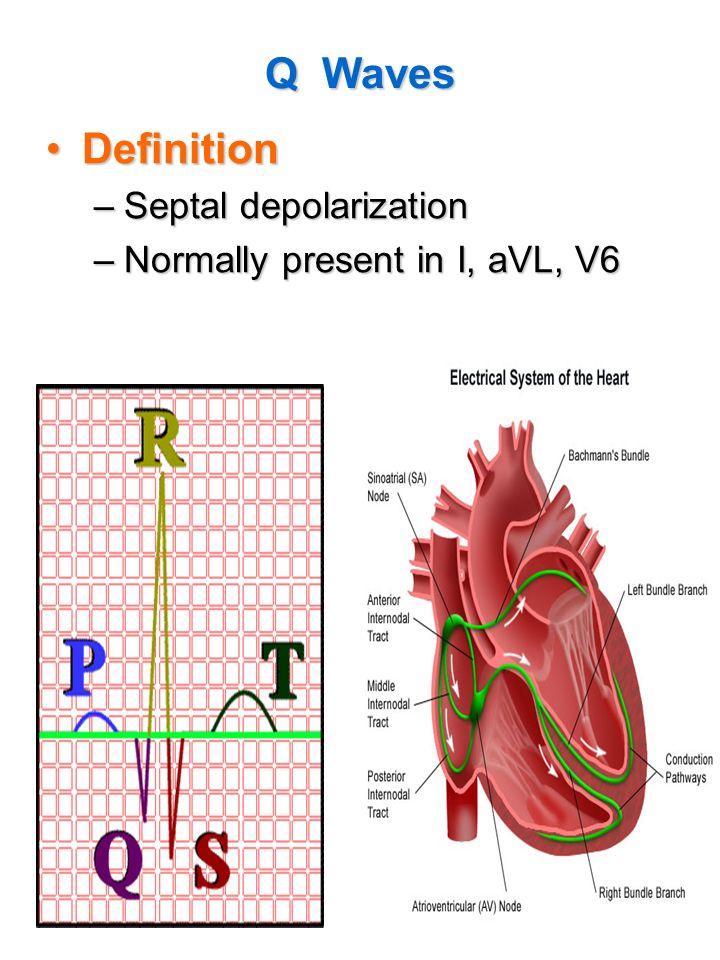 78 Q Waves DefinitionDefinition –Septal depolarization –Normally present in I, aVL, V6