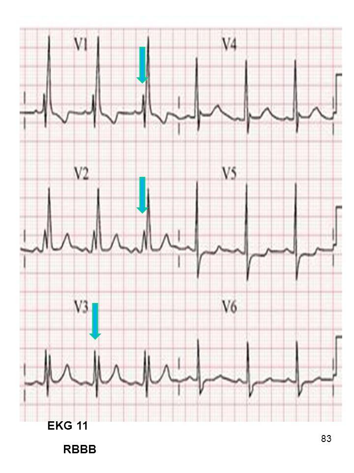 83 EKG 11 RBBB