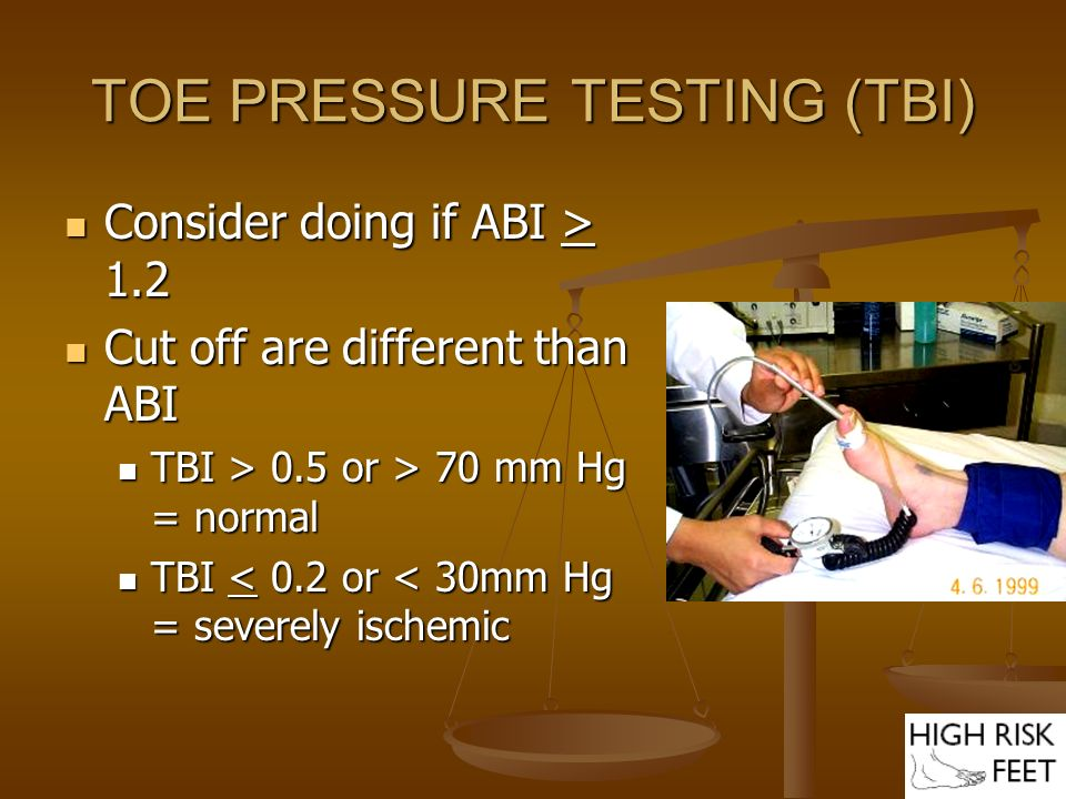 TOE PRESSURE TESTING (TBI) Consider doing if ABI > 1.2 Consider doing if ABI > 1.2 Cut off are different than ABI Cut off are different than ABI TBI >