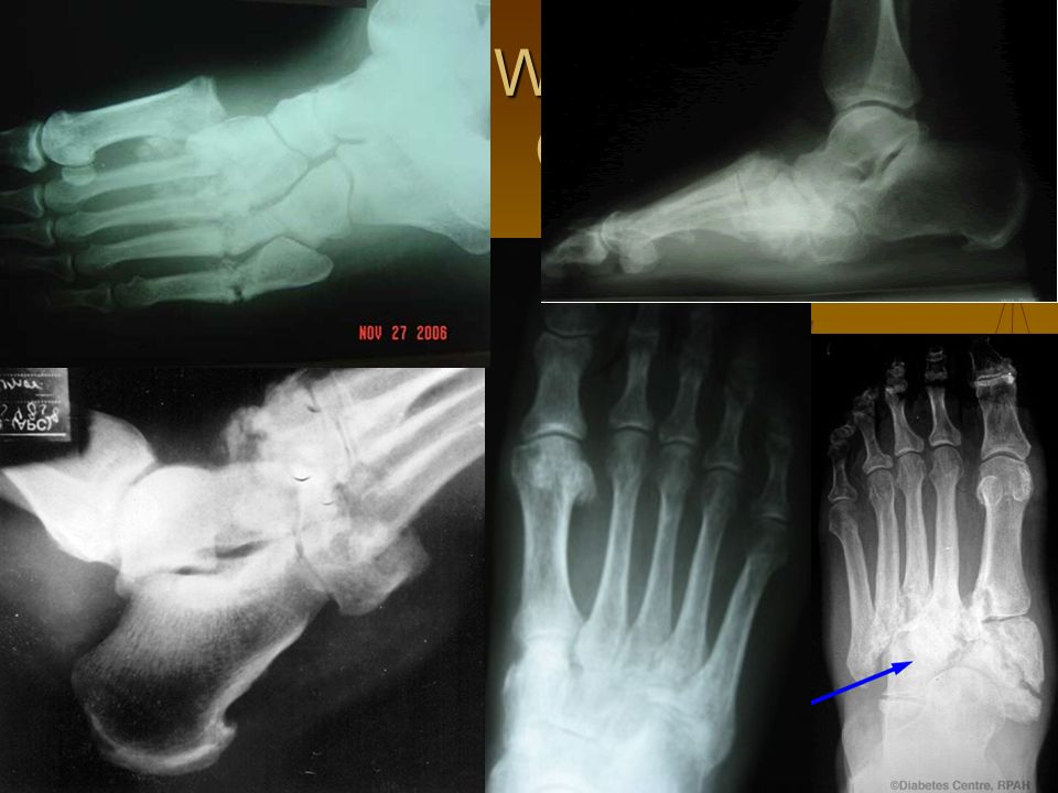 WHICH ONE IS CHARCOT FOOT?