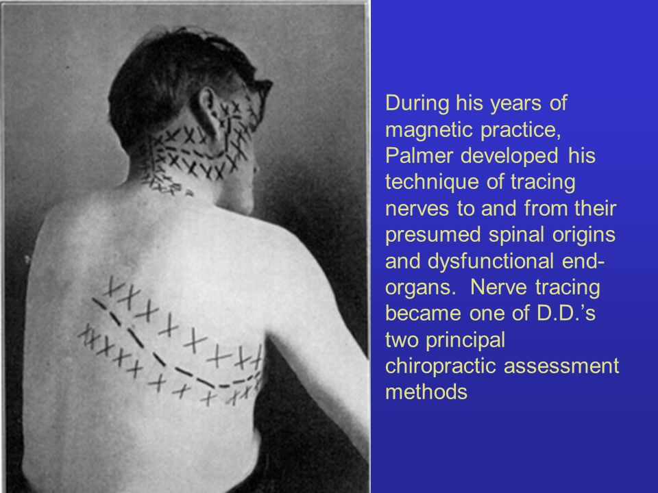 During his years of magnetic practice, Palmer developed his technique of tracing nerves to and from their presumed spinal origins and dysfunctional en
