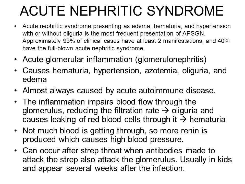 ACUTE NEPHRITIC SYNDROME Acute nephritic syndrome presenting as edema, hematuria, and hypertension with or without oliguria is the most frequent prese