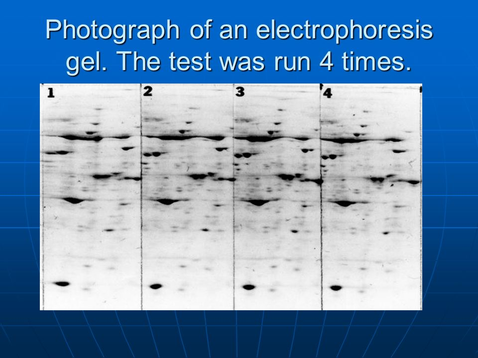 Photograph of an electrophoresis gel. The test was run 4 times.
