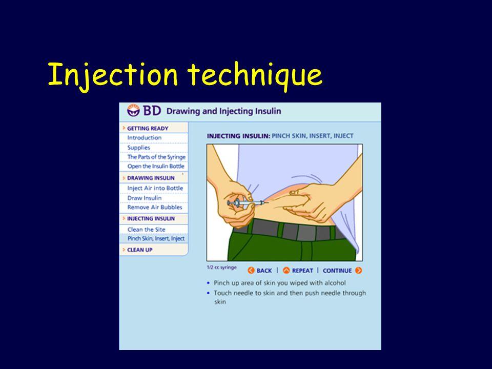 Injection technique
