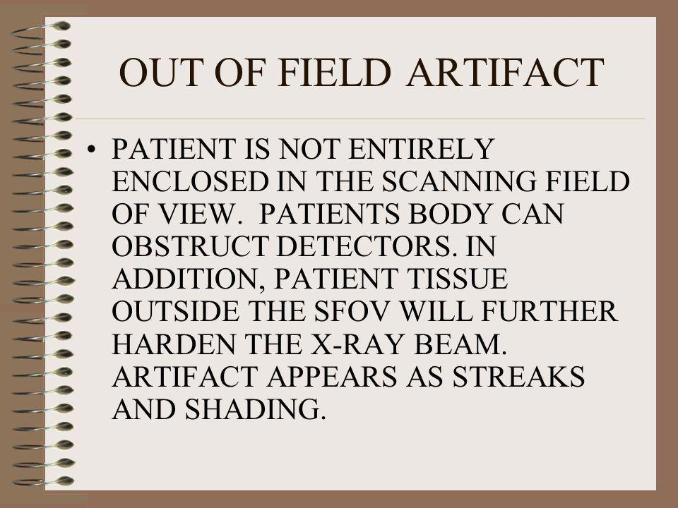 OUT OF FIELD ARTIFACT PATIENT IS NOT ENTIRELY ENCLOSED IN THE SCANNING FIELD OF VIEW. PATIENTS BODY CAN OBSTRUCT DETECTORS. IN ADDITION, PATIENT TISSU