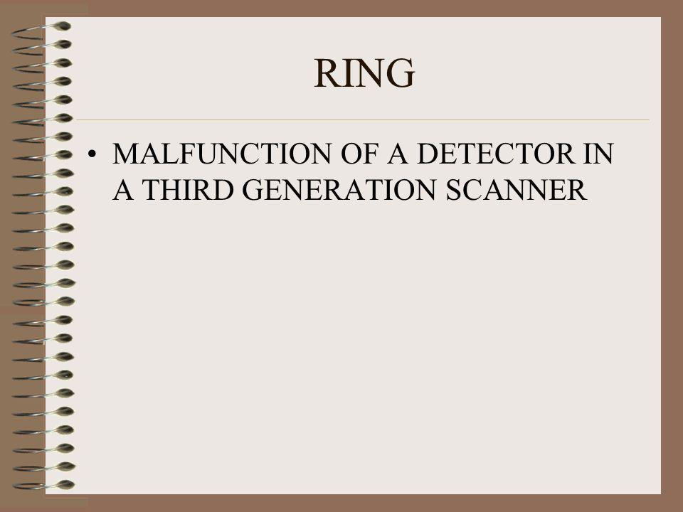 RING MALFUNCTION OF A DETECTOR IN A THIRD GENERATION SCANNER