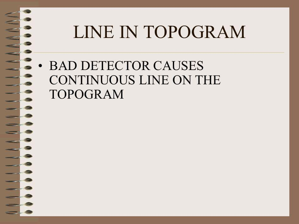 LINE IN TOPOGRAM BAD DETECTOR CAUSES CONTINUOUS LINE ON THE TOPOGRAM